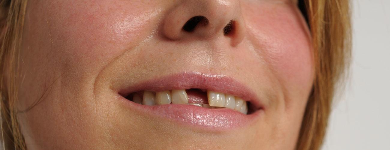 Leben mit zahnlücke backenzahn