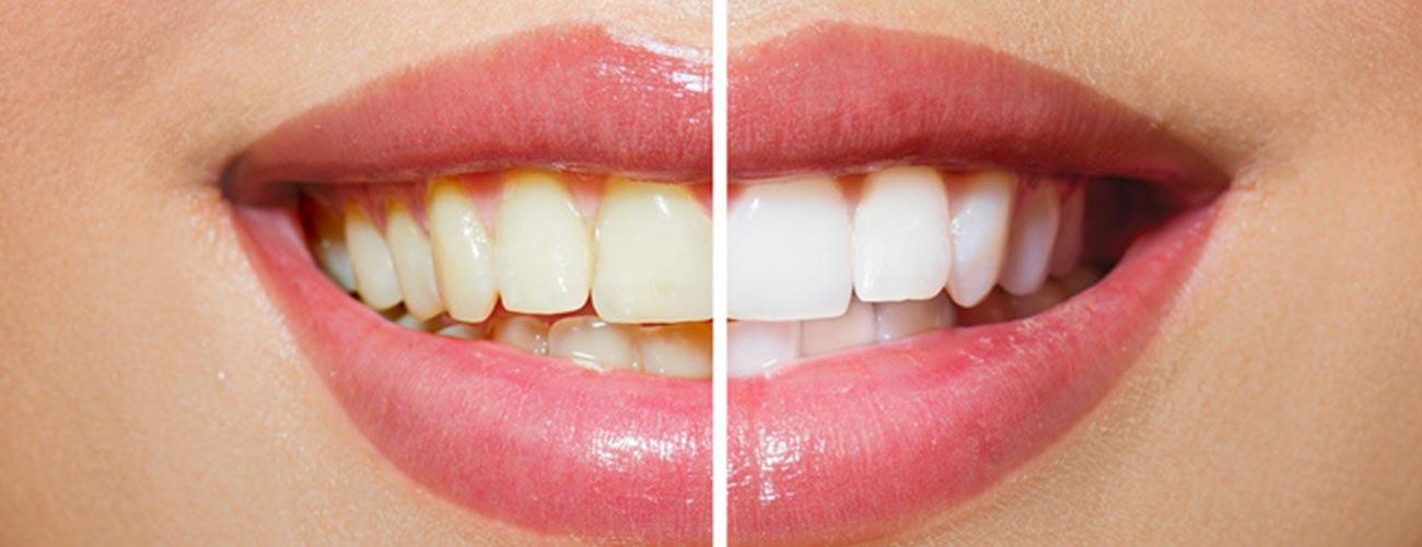 Ein Mund in Großaufnahme, dessen linke Hälfte normalfarbene Zähne aufweist und die rechte Hälfte aufgehellte Zähne, veranschaulicht, wie ein Bleaching der Zahnärzte im Schloss in Berlin Steglitz gegen Zahnverfärbungen hilft.