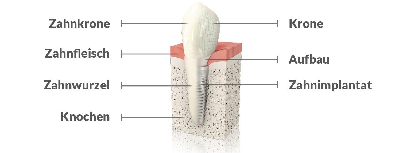 Die Grafik zeigt den Aufbau eines Implantats. Anhand solcher Grafiken informieren die Zahnärzte im Schloss Berlin Steglitz ihre Patienten, wie ein Implantat funktioniert.