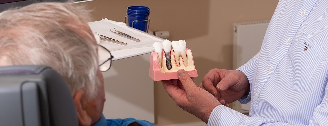 Jürgen Hellmer, Zahnarzt bei den Zahnärzten im Schloss Berlin Steglitz, erklärt einem Patienten anhand eines Modells die Funktionsweise von Implantaten.