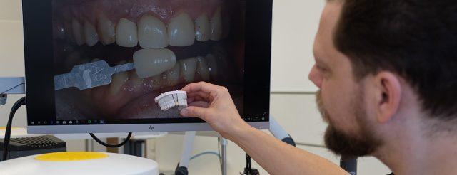 Zahntechnikermeister Chris Vörös vergleicht den fertigen Zahnersatz im Meisterlabor dent-a-pur Steglitz mit einer digitalen Aufnahme des Patienten.